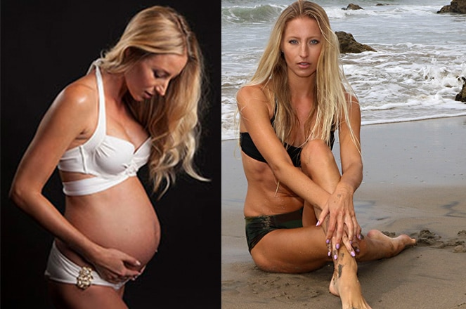 before-and-after-pregnancy-weight-loss